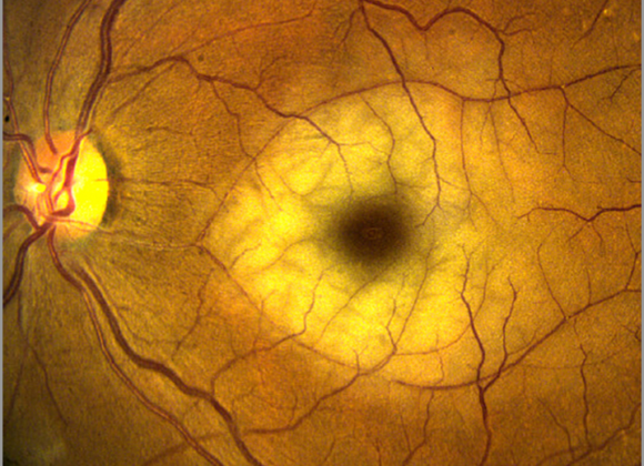 Retinal Artery Occlusions